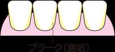 歯垢(しこう)=プラーク