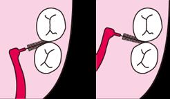 歯間ブラシを隣りあった前後の歯の片方の面ごとに軽く当て清掃します。