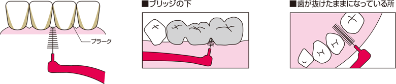 歯間ブラシの使用部位