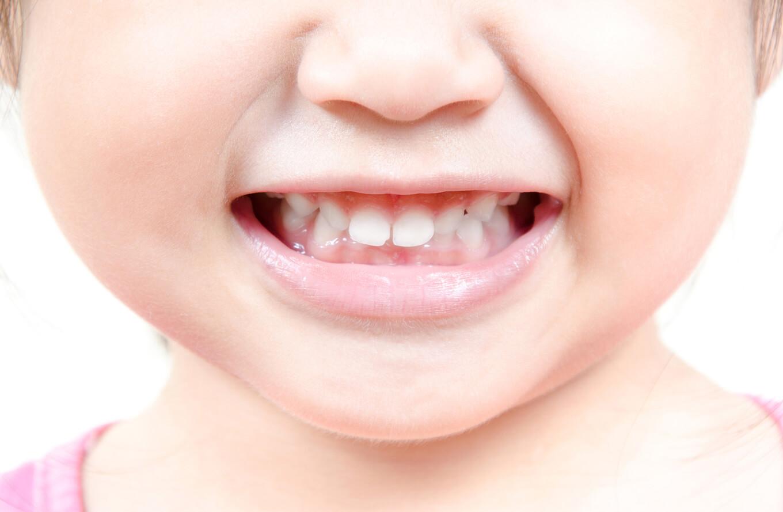悪い 歯並び